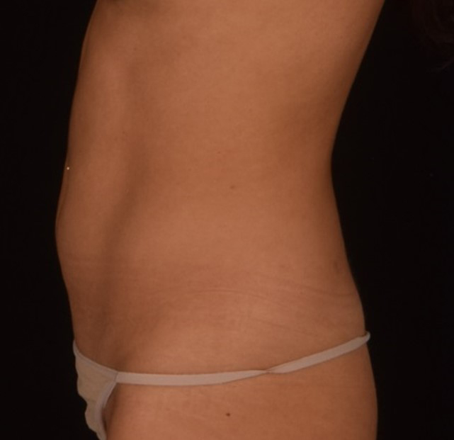 SculpSure Patient 3 Left Profile After