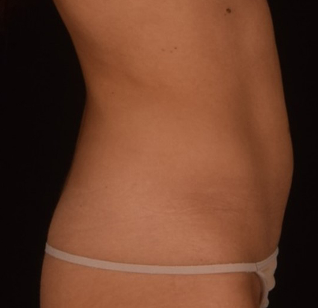 SculpSure Patient 3 Right Profile After