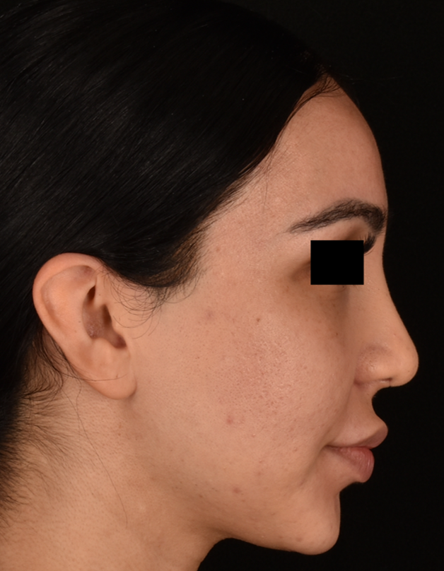 Rhinoplasty Patient 10 Right Profile After