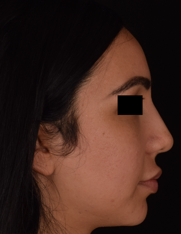 Rhinoplasty Patient 10 Right Profile Before