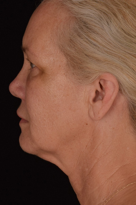 Micro Neck Lift Patient 2 Before