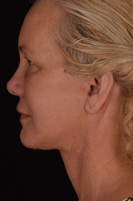 Micro Neck Lift Patient 2 After