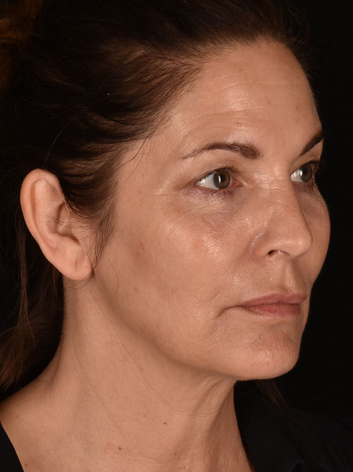 Blepharoplasty Patient Before Angle